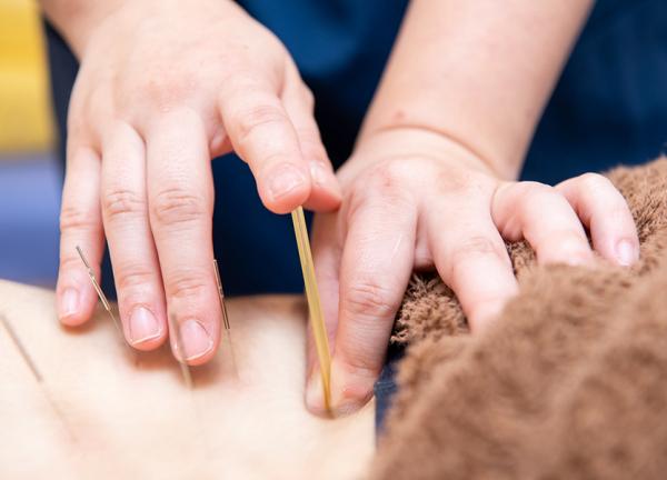 神田鍼灸整骨院3号店司町院の施術風景画像