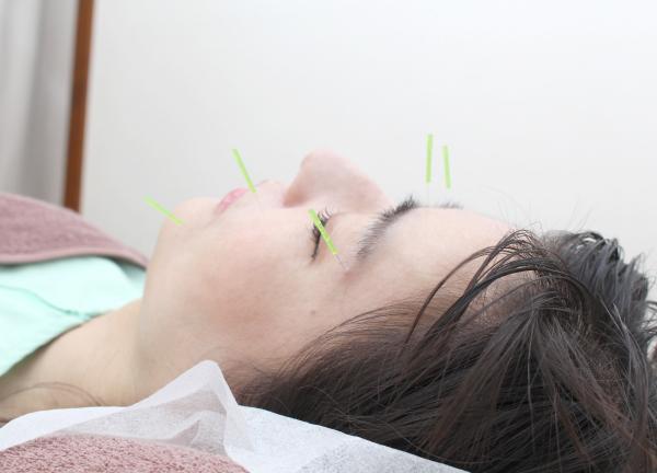 あおぞら鍼灸治療室の施術風景画像