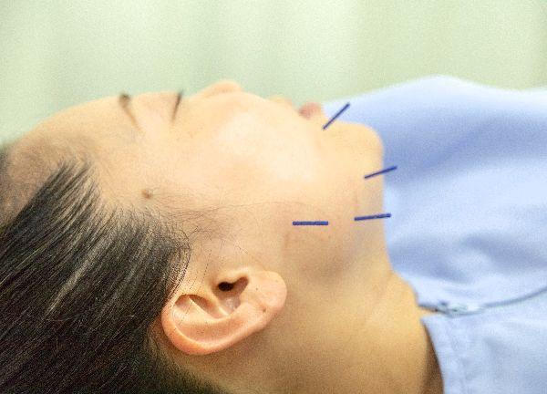 梅沢鍼灸院のメインビジュアル