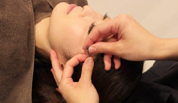 〜美容鍼サロン〜LUCRALTEの施術風景画像