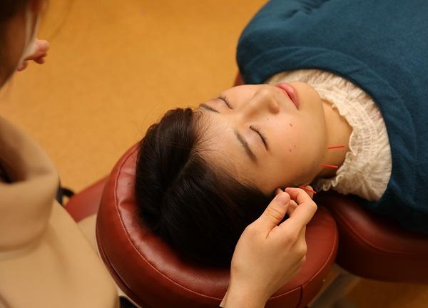 吹田 森脇鍼灸整骨院の施術風景画像