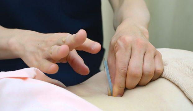 天心堂接骨鍼灸マッサージ院の施術風景画像02