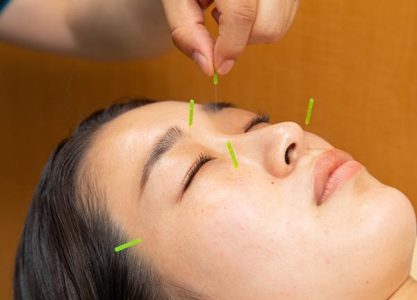 NOMOKOTSU鍼灸・整骨院 我孫子院の美容鍼の施術風景画像