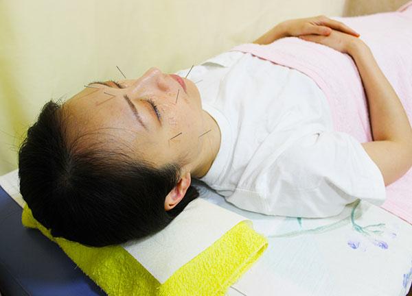 とみひさ鍼灸整骨院の施術風景画像