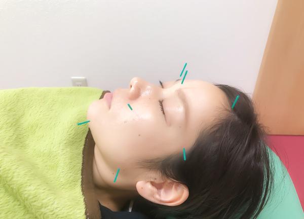 気楽鍼灸整骨院の施術風景画像