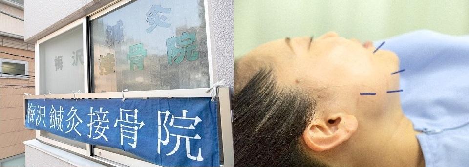 梅沢鍼灸院施設写真