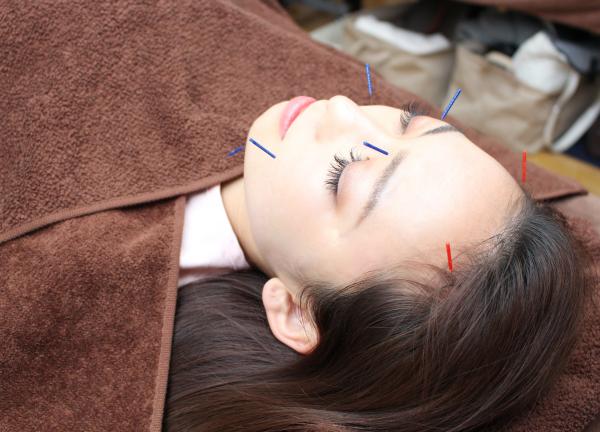 鍼灸サロンアイボリーローズの施術風景画像