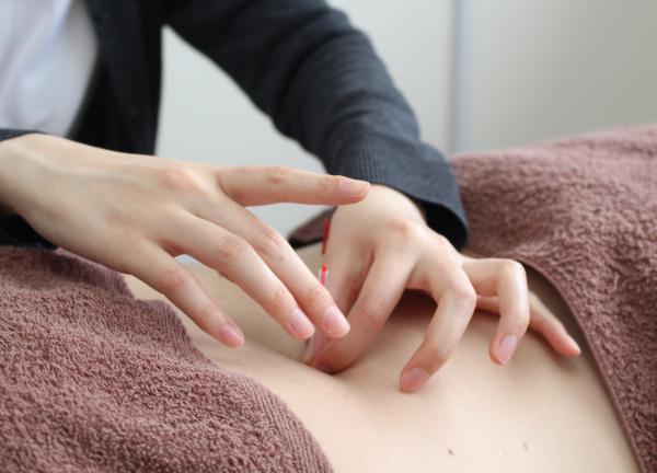 よみうりランド鍼灸整骨院の施術風景画像