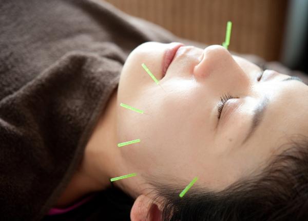 アムラス鍼灸の施術風景画像