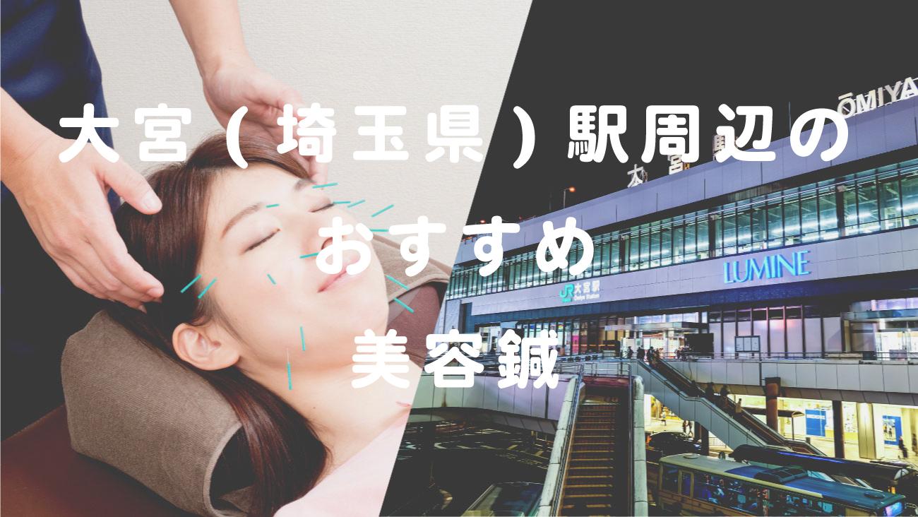 大宮駅(埼玉県)周辺で美容鍼が受けられるおすすめの整骨院のコラムのメインビジュアル