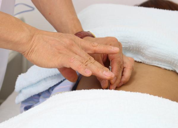 仁成堂鍼灸治療専門院の施術風景画像