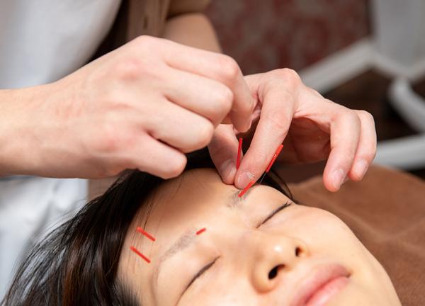 美容鍼灸院 ブレア銀座の施術風景画像