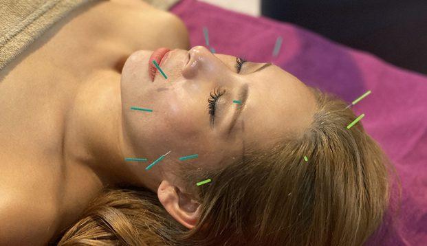 AMINAS美容鍼灸院の施術風景画像