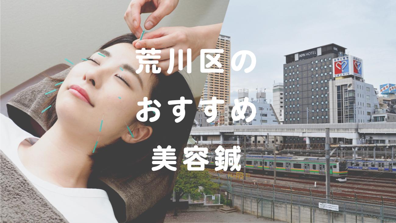 荒川区で美容鍼が受けられるおすすめの鍼灸院のコラムのメインビジュアル